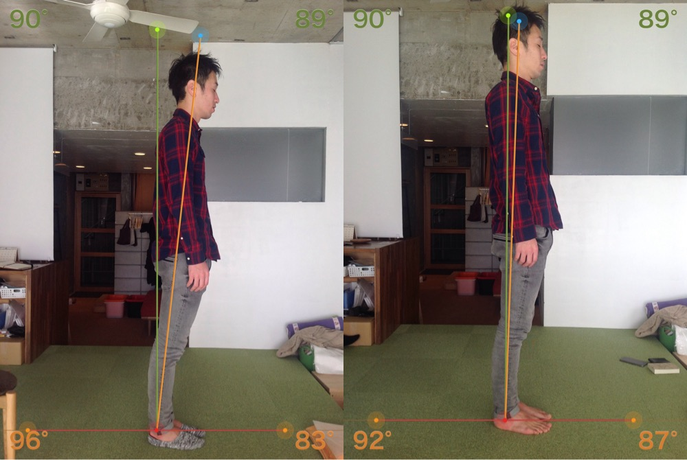 鍼灸治療効果姿勢の変化